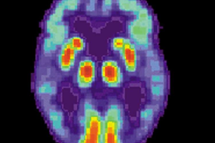 un-farmaco-antiepileptico-mejora-la-memoria-espacial-en-alzheimer