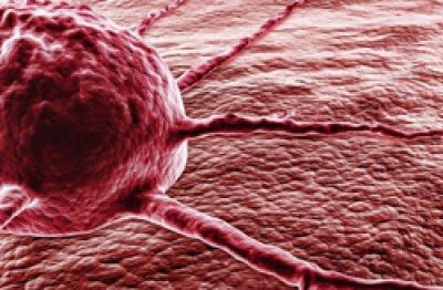 posible relacion entre antidiabeticos y las lesiones en el pancreas