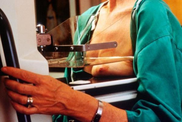 coacutemo abordar el estreacutes durante el tratamiento del caacutencer de mama
