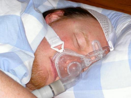 un anaacutelisis predictivo ayuda a personalizar el tratamiento de la apnea del suentildeo en pacientes con hipertensioacuten