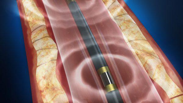 la fda aprueba un tratamiento ultrasoacutenico para las calcificaciones arteriales