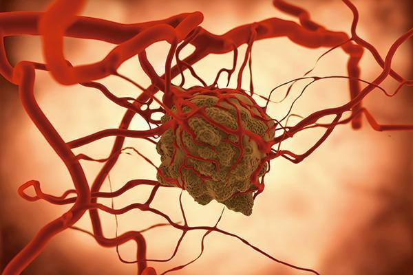 buscando-nuevas-dianas-terapeuticas-en-el-cancer-liquido