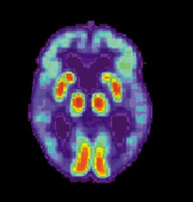 los cambios en el estilo de vida podriacutean reducir el riesgo de alzheimer