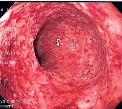 certolizumab en el tratamiento de la enfermedad de crohn