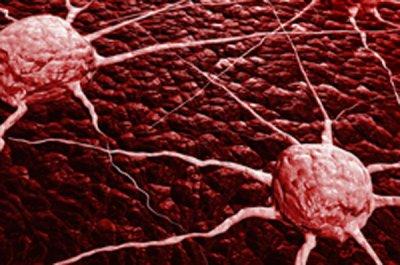 cientficos espaoles identifican una nueva va para frenar el crecimiento del cncer de mama