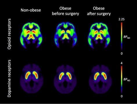la cirugiacutea para la obesidad estabiliza los opioides cerebrales
