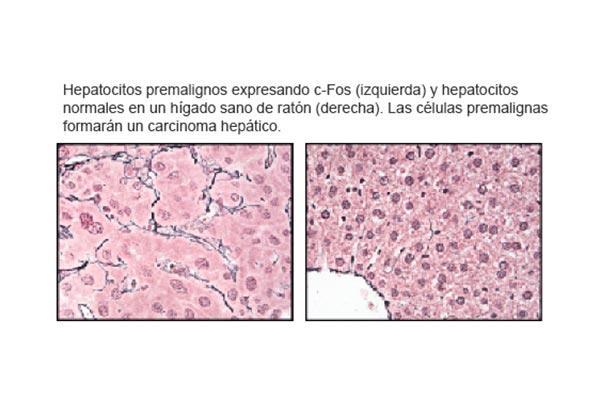 el cnio describe un nuevo viacutenculo molecular entre colesterol inflamacioacuten y caacutencer de hiacutegado