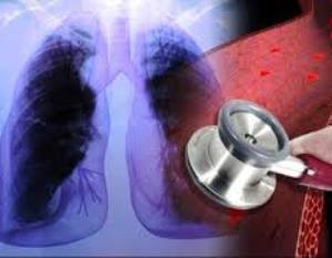 la combinacioacuten de los faacutermacos ambrisentan y tadalafil mejora la hipertensioacuten arterial pulmonar