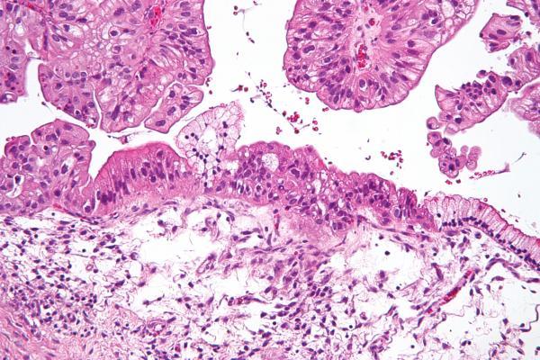 el cribado podriacutea reducir la mortalidad por caacutencer de ovario