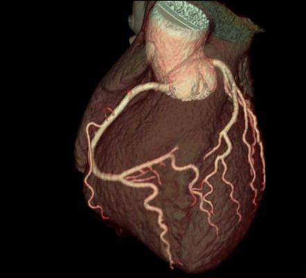 curso imagen corazon