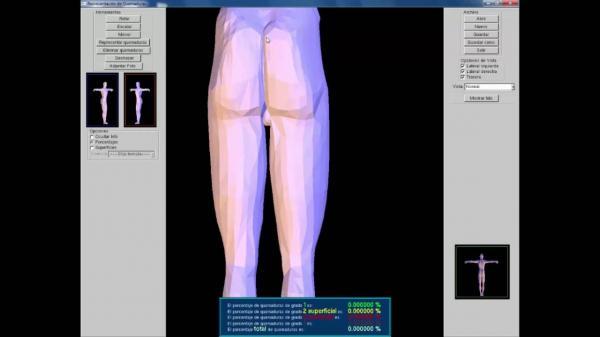 desarrollan-una-aplicacion-que-ayuda-a-calcular-la-superficie-del-paciente-quemado