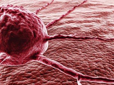 cáncer de próstata voluminosos
