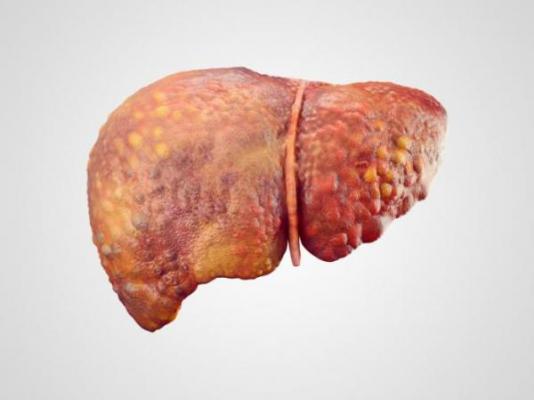 descubren una hormona que limita el alcance de la fibrosis en lanbspesteatosis hepaacutetica