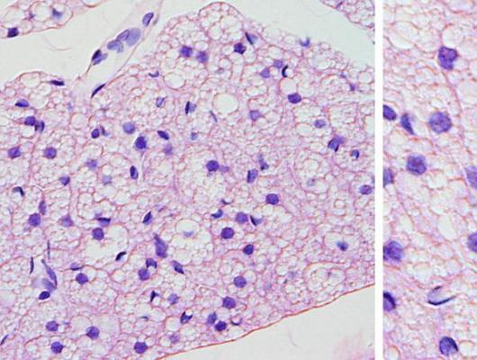 descubren el interruptor molecular de la termogeacutenesis en el tejido adiposo
