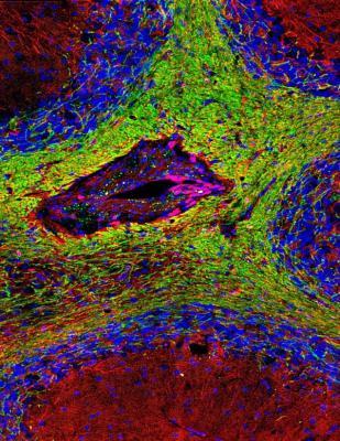 descubren un nuevo aspecto en la patogeacutenesis de la esclerosis muacuteltiple