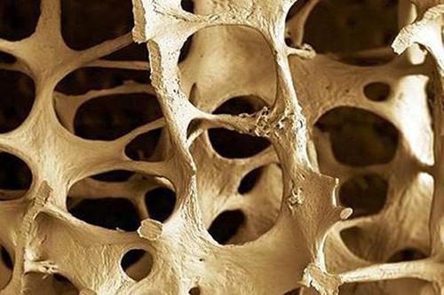 desmienten-que-la-suplementacion-con-calcio-aumente-la-densidad-osea