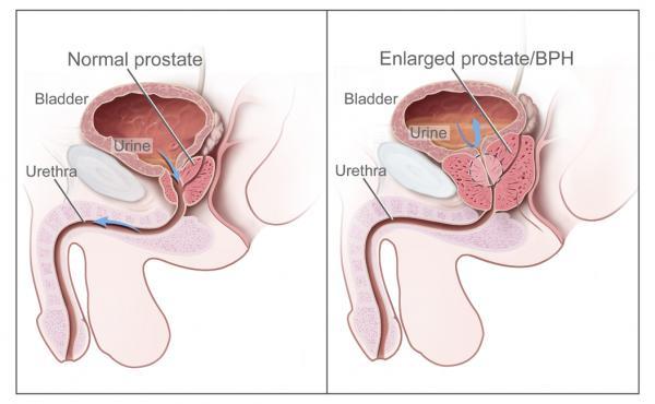 documento de consenso de aeu semergen semfyc y semg para el diagnstico y tratamiento de la hiperplasia benigna de prstata