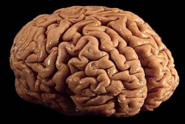 un-estudio-confirma-la-acumulacioacuten-de-contaminantes-en-el-cerebro