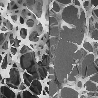 un-estudio-sugiere-que-un-nuevo-farmaco-podria-tratar-tanto-la-diabetes-tipo-2-como-la-osteoporosis