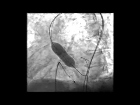factores de riesgo y resultados cliacutenicos de la endocarditis infecciosa tras una valvuloplastia aoacutertica con cateacuteter