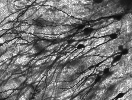 la flexibilidad de las redes neuronales condiciona el riesgo geneacutetico de sufrir esquizofrenia
