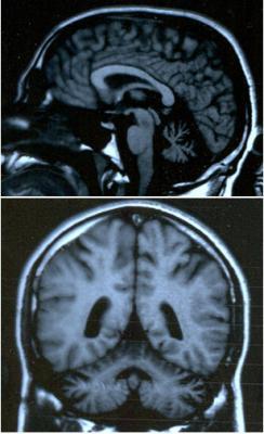un grupo de cientiacuteficos utiliza tecnologiacutea avanzada para comprender mejor un trastorno neurodegenerativo devastador