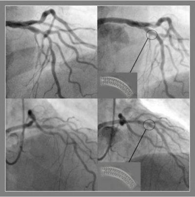hm hospitales realiza intervenciones con implantacin de stents bioabsorbibles con angina de pecho e infarto de miocardio