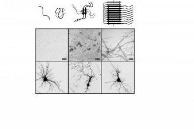 identificado el patrn estructural responsable de la toxicidad de la protena beta amiloide