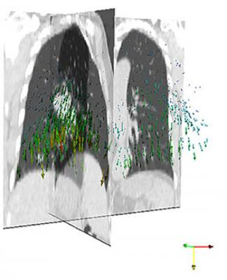 imaacutegenes niacutetidas de tumores en movimiento