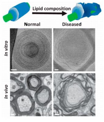 la inestabilidad de la mielina podriacutea ser el desencadenante de la esclerosis muacuteltiple