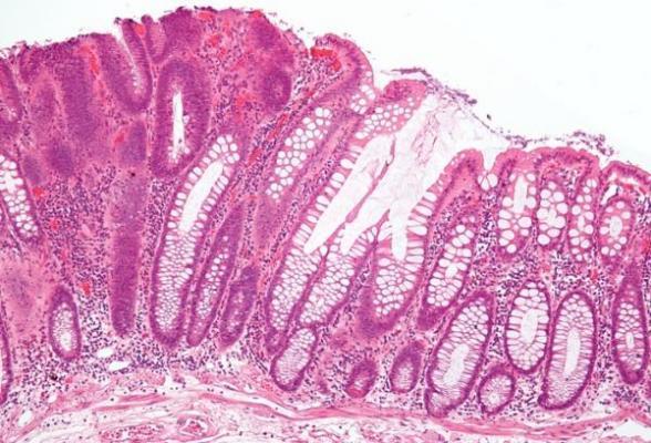 la ingesta de calcio y vitamina d no reduce los poacutelipos colorrectales
