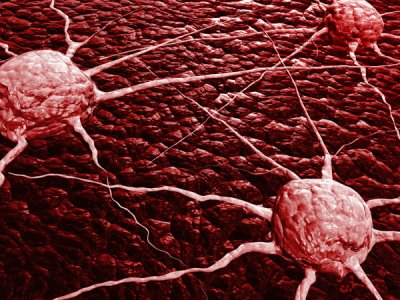 la inmunoterapia contra el cncer puede frenar la resistencia a la radioterapia