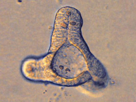 un intestino miniaturizado facilitaraacute la investigacioacuten en la diabetes y la obesidad