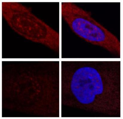 una investigacioacuten revela nuevos mecanismos moleculares de la enfermedad de huntington