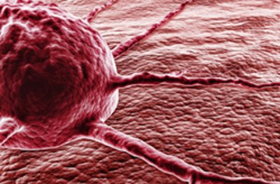 investigadores descubren una proteina clave para que pacientes de cancer hepatico respondan a la quimioterapia