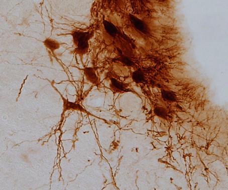 investigadores de la uca hallan un mecanismo comuacuten en el cerebro entre el dolor diabeacutetico y la ansiedad