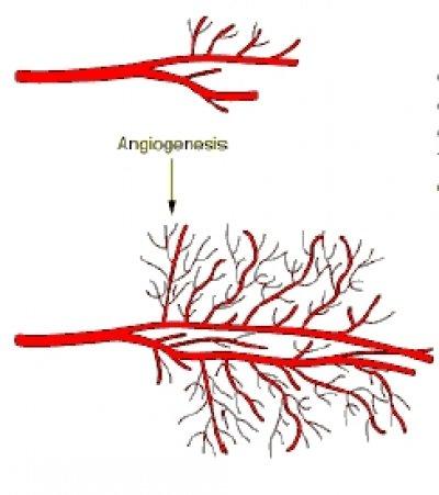 mayor riesgo de muerte con un subgrupo de inhibidores de la angiognesis