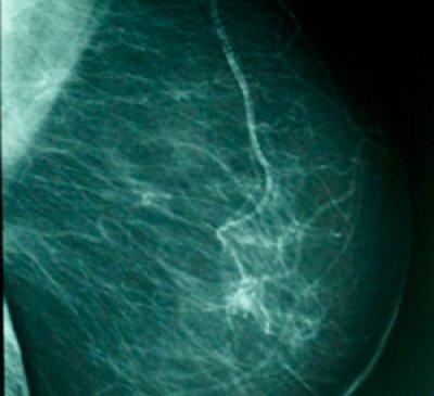 mayor supervivencia en el cncer de mama metastsico con eribulina
