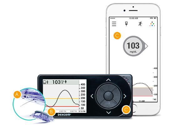 novalab lanza sus innovaciones en monitorizacioacuten continua de glucosa en el ded