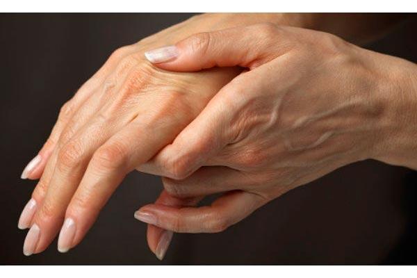 nueva herramienta pronoacutestica para la artritis reumatoide