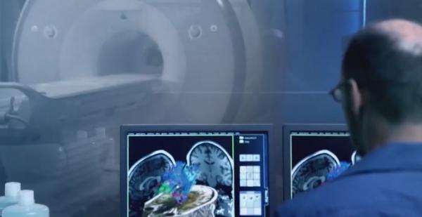 nuevas aplicaciones de resonancia magneacutetica reducen hasta un 68 los tiempos de exploracioacuten en escaacuteneres cerebrales