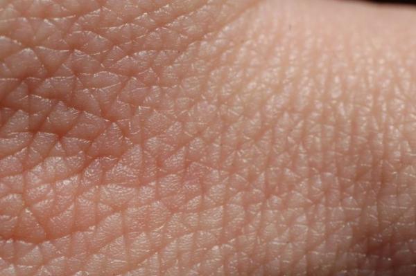 un nuevo meacutetodo que predice el quotestiramientoquot de la piel podriacutea fomentar su crecimiento tras una quemadura