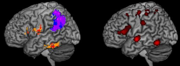 iquestqueacute pasa en el cerebro cuando uno no puede deletrear