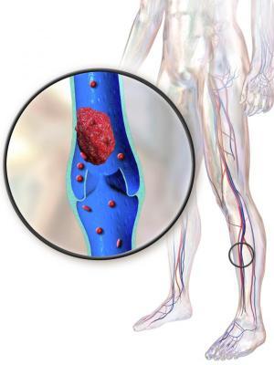 el uso preoperatorio de anticoagulantes es seguro para los pacientes con caacutencer