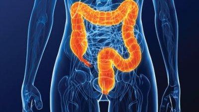 colonoscopia después de una cirugía de próstata
