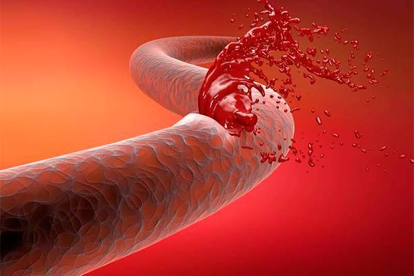 la produccioacuten de factores de coagulacioacuten en plantas ofrece promesa en el tratamiento de la hemofilia