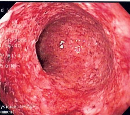 proponen un nuevo mecanismo etiolgico en la enfermedad de crohn