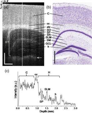 pruebas de imagen no invasivas permiten estudiar el cerebro vivo